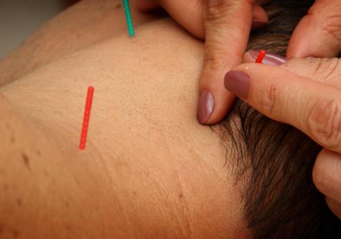 clinica-acupuntura-tratamento-da-dor-campinas-alecrim
