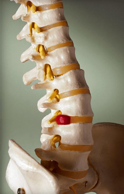 dor-nas-costas-2
